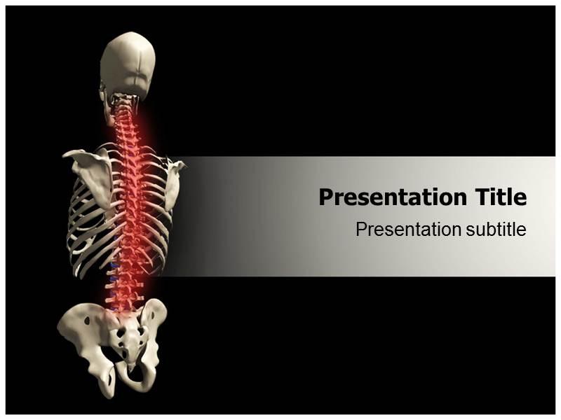 osteoporosis powerpoint templates free download gallery, Powerpoint templates