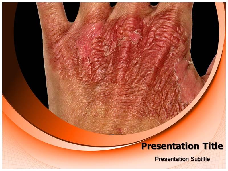 Skin burn powerpoint templates and backgrounds download toneelgroepblik Gallery