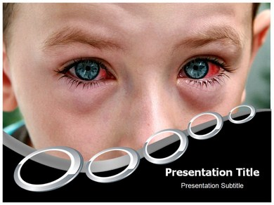 Ophthalmia PPT Presentation Template