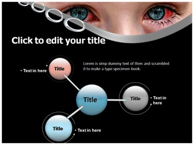 ophthalmia powerpoint template