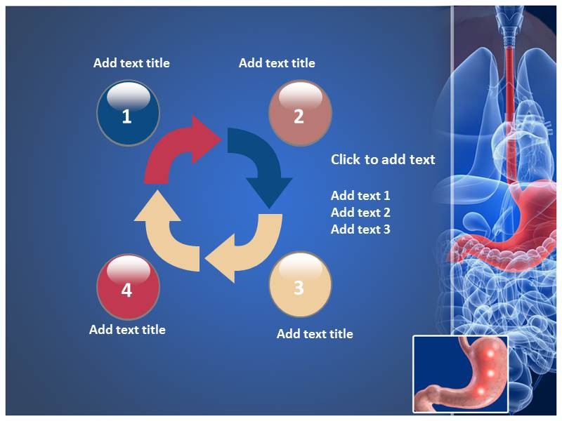 PowerPoint Templates On Peptic Ulcer
