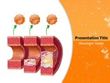 Atherosclerosis Templates For Powerpoint