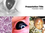 Nephrotic Syndrome Templates For Powerpoint