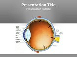 Glaucoma Templates For Powerpoint