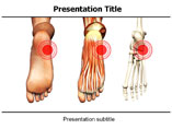 Orthopedics Templates For Powerpoint