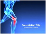 Orthopedic Knee Surgery Templates For Powerpoint