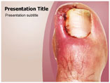 Acromegaly Templates For Powerpoint