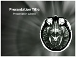 MRI Head Templates For Powerpoint