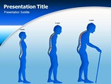 Animated Osteoporosis Treatment Templates For Powerpoint