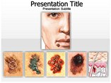 animated powerpoint template - Skin Cancer