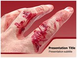Abrasion Treatment Templates For Powerpoint