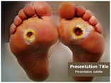 Diabetic Foot Templates For Powerpoint