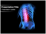 Osteoporosis causes Templates For Powerpoint