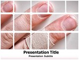 Wound Healing Templates For Powerpoint