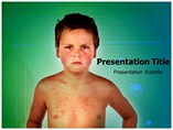 Measles Templates For Powerpoint