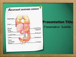 Recurrent Ovarian Cancer Templates For Powerpoint