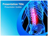 Spinal Tumor Templates For Powerpoint