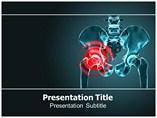 Arthritis Symptoms Templates For Powerpoint