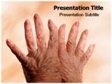 Osteoarthritis Templates For Powerpoint