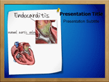 Endocarditis Templates For Powerpoint