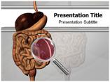 Giardiasis Treatment Templates For Powerpoint