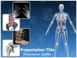 Orthopaedic Treatment Templates For Powerpoint