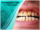 Dental plaque Templates For Powerpoint