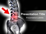 Human spinal Templates For Powerpoint