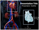 Catheterizations Templates For Powerpoint