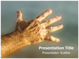 Vitiligo Templates For Powerpoint