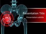 Arthritis PowerPoint Slides
