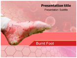 Burn Injuries Templates For Powerpoint
