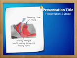 Sleep Apnea Syndrome Templates For Powerpoint