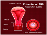 Cervical cancer Templates For Powerpoint