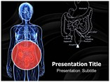 Colon Cancer Templates For Powerpoint