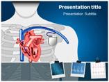 Arrhythmia Templates For Powerpoint