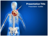 Bone Marrow Aspiration Templates For Powerpoint