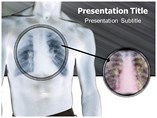 Pneumoconiosis Templates For Powerpoint