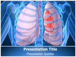 Pneumothorax Templates For Powerpoint