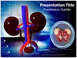 Renal Tumors Templates For Powerpoint