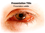 eye Infection Templates For Powerpoint