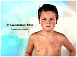 Child Disease Templates For Powerpoint