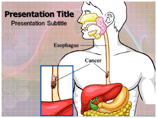 Esophageal Cancer Templates For Powerpoint