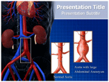Abdominal Aneurysm Templates For Powerpoint