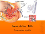 IUI Procedure Templates For Powerpoint