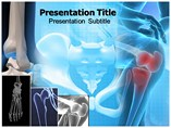Bone Cancer Templates For Powerpoint