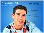 Palsy, Bells Templates For Powerpoint