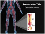 Peripheral Artery Disease Templates For Powerpoint