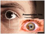 Melanoma,iris Templates For Powerpoint