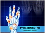 Hands Arthritis Templates For Powerpoint